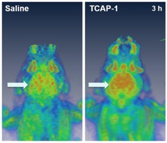 Increase in activity in neural regions