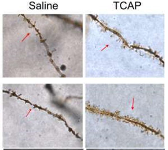Significant increase in dendritic spine density in hippocampal regions